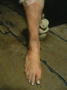 Prosthetic Leg - Male 2
